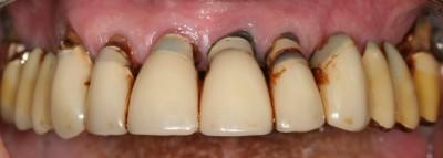 parodontite terminale