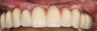 MCI suite à extraction des dents antérieures
